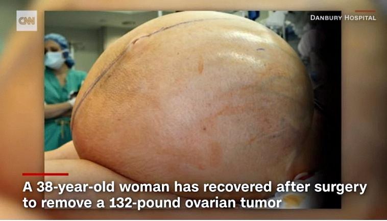 Surgeons remove 132lb tumor